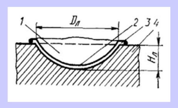 схема образования лунки